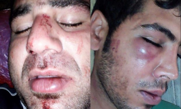 Iranian refugees on Manus allegedly assaulted by PNG police